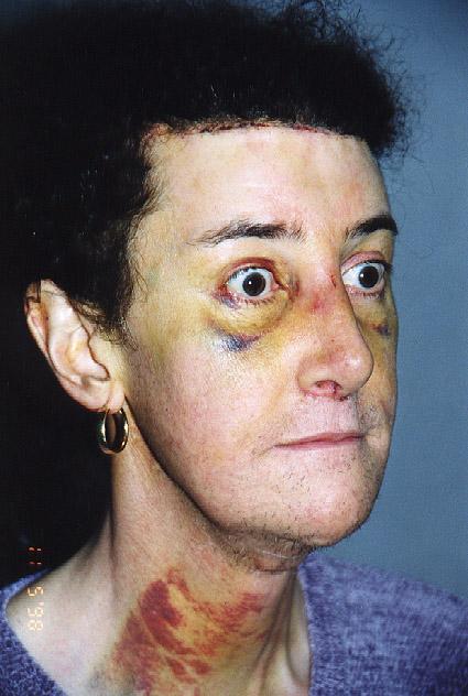 facial-bruising-plastic-surgery