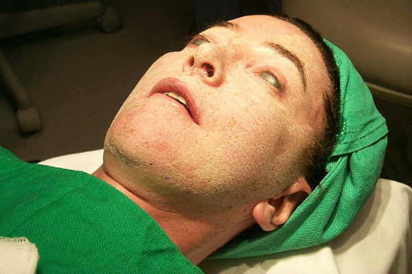 My Experience with Laser Skin Resurfacing